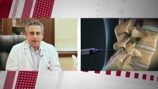 Şiddetli Bel Ağrısı Olan Hastalarda Uygulanan Kriyoplasti Nedir? - Op. Dr. Mahmut Gökdağ