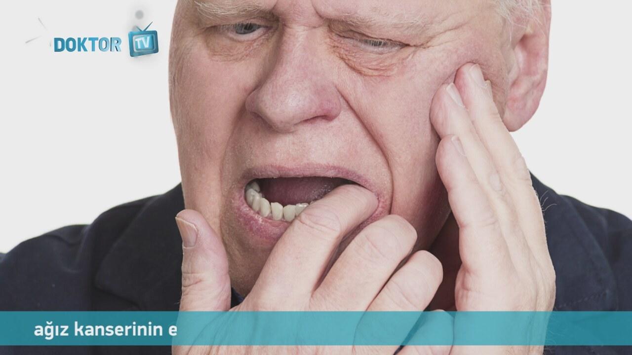 Akromegali nedir, belirtileri ve tedavisi