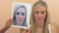 Öncesi ve Sonrasıyla Botoks (Botox Before After)