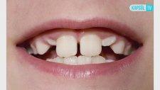 Süt Dişleri Ne Zaman Dökülür? Çektirmek Zararlı Mıdır?