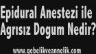 Epidural Anestezi ile Agrısız Dogum