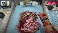 Surgeon Simulator: Böbrek Nakli - Bölüm 2 - Sucuk ama Bunlar ?