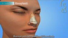 Rinoplasti (Burun Estetigi Ameliyatı) Nasıl Yapılır?