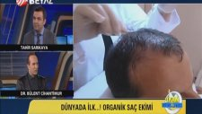 Organik Saç Ekimi Nasıl Ortaya Çıktı