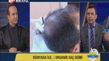 Organik Saç Ekimi Ne Kadar Sürer