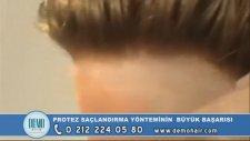 Türkye Protez Saç Merkezi Saç Protez Bayan Video Uygulamasi