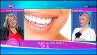 Diş beyazlatma hakkında tavsiyeler