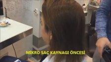 Mikro Saç Kaynağı Nedir, Nasıl Yapılır Video