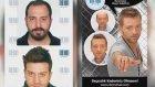 Demo hair protez yapılışı ve uygulamasi video protez saç nasıl yapılıyor Doktor Mitat aktürk Ankara