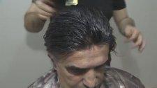 Protez Saç Uygulamasi Video Doktor Mitat Aktür Protez Saç Üneriyor 02122240580 Almanya