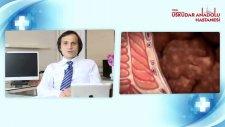 Hemoroid teşhisi nasıl konur?
