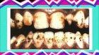 Arıza Adam ve diş sağlığı! :)))
