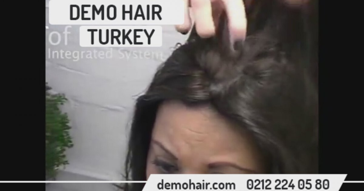 hair prothesis New england hair illusions has been in the business of providing hair prosthesis to men, women and children for over 24 years it has been our mission to help clients choose the best wig to meet their needs and lifestyle.