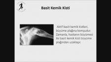 Ortopedi, Kemik Tümörleri, Basit Kemik Kisti