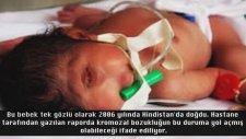 Dünyanın En ilginç Doğan 10 Bebeği