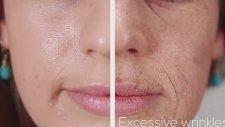 Sigara İçmek Yüzünüzü Nasıl Etkiler?