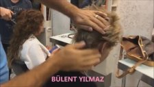 Mikro Saç Kaynağı Nasıl Yapılır? Öncesi Sonrası Resimleri
