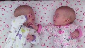 Tek Yumurta İkizleri Birbirlerine Dokunarak İletişim Kurmaya Çalışıyor