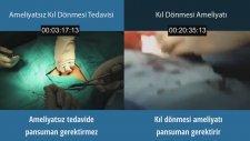 Kasıkta Ameliyatsız Kıl Dönmesi Tedavisi - 444 8 623