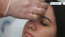 Akupunktur Nedir Nasıl Uygulanır ?