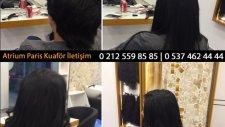 Saç Kaynağı Öncesi Sonrası Örnekleri - Saç Kaynak Videoları