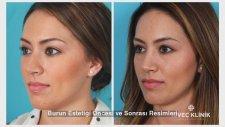 Burun estetiği öncesi ve sonrası resimleri isveç klinik