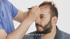 Ucuz ama kaliteli saç ekimi nerelerde yaptırılır?