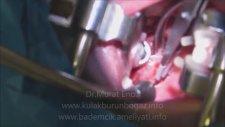 Thermal Welding Yöntemi İle Kansız ve Bıçaksız Bademcik Ameliyatı