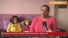Skolyoz Hastası Melek'e Belediyeden Yardım Eli Uzandı