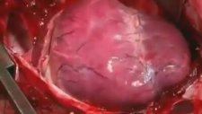 Açık Kalp Ameliyatında Kalp Krizi Geçirmek