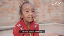 Erken Yaşta Yaşlanma Hastalığına Yakalanmış Hint Kardeşler