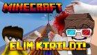 ELİM KIRILDI! - Minecraft Elmas Parkur!