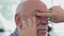 Alt Göz Kapağı Estetiği - Op.Dr.Defne Erkara