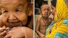 Hastalığı Nedeniyle 80 Yaşında Gibi Gözüken 4 Yaşındaki Çocuk