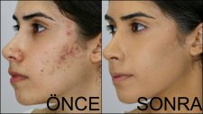 Sivilce-Akne Ve Sivilce Lekesi Nasıl Kapatılır? I How To Cover Acne & Acne Scars