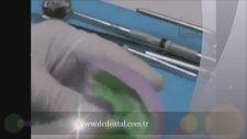 Porselen Kaplama Nasıl Yapılır
