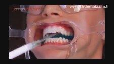 Ultradent Opalescence Boost ile Diş Beyazlatma
