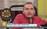 Tam Vücut  Kafa Nakli Yapılan İlk Kişi  Valery Spiridonov