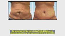 How To Get Rid Of Stretch Marks | Surgical Options