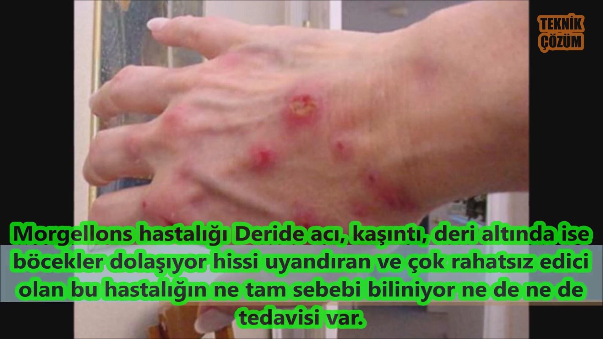 Morgellons Hastalığı