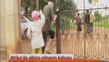 Afrika'da Albino Olmanın Kabusu