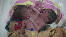 Düyaya Yapışık Gelen İkizler