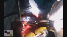 Kansız Bademcik Ameliyatı – Thermal Welding Tonsillektomi