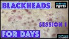 Siyah Nokta Temizleyen Doktordan İzlemeyi Sevenlere Hipnoz Etkili Video