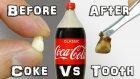 Kolanın Dişte Bıraktığı Etki