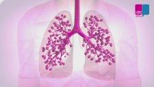 Koah Olunduğunda Akciğerlerde Ne Olur?
