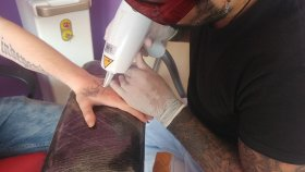 Adapazarı Dövme Silme Tattoo Removal Sakarya Barış Yüksek
