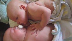 Tek Emziği Birlikte Emen İkizler