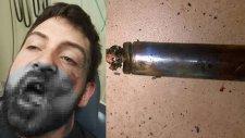 Patır Kütür Patlayan Elektronik Sigara Mı? Normal Sigara Mı? (Hangisi Daha Zararlı?)