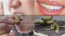 Muz Kabuğu İle Diş Beyazlatma